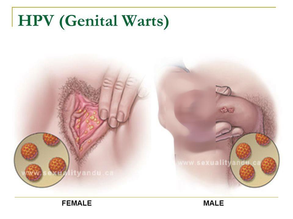 HPV Virus ویروس HPV