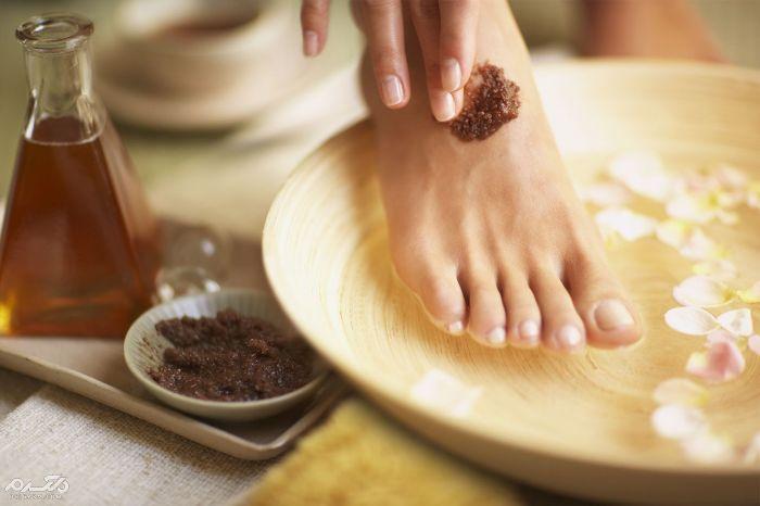 استفاده از عسل در درمان زخم پا