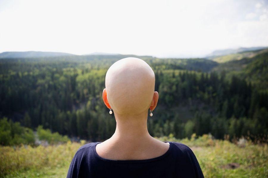 درمان سرطان زنان، سرطان هایی که زندگی شما را تهدید می کند