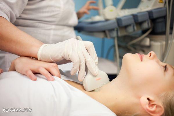 پرکاری تیروئید - هیپرتیروئیدیسم و درمان ید رادیواکتیو