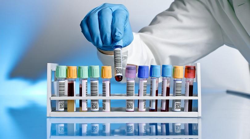 معنی حروف اختصاری در انواع آزمایش پزشکی