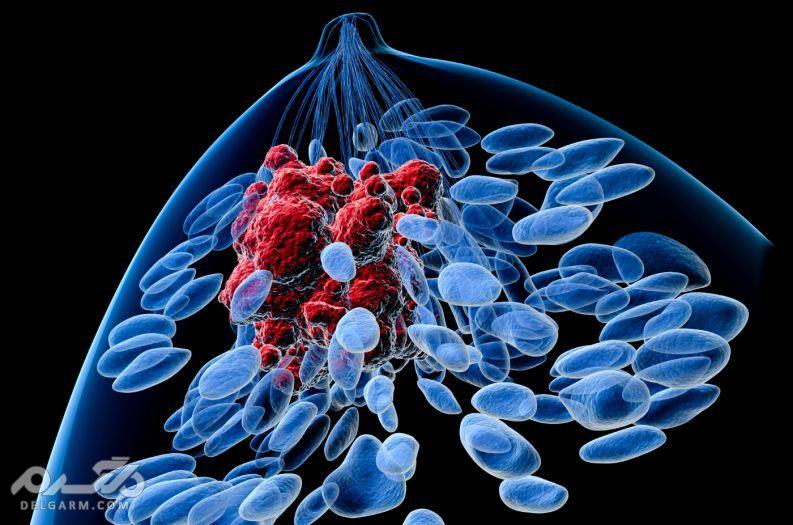 فیبروآدنوم سینه