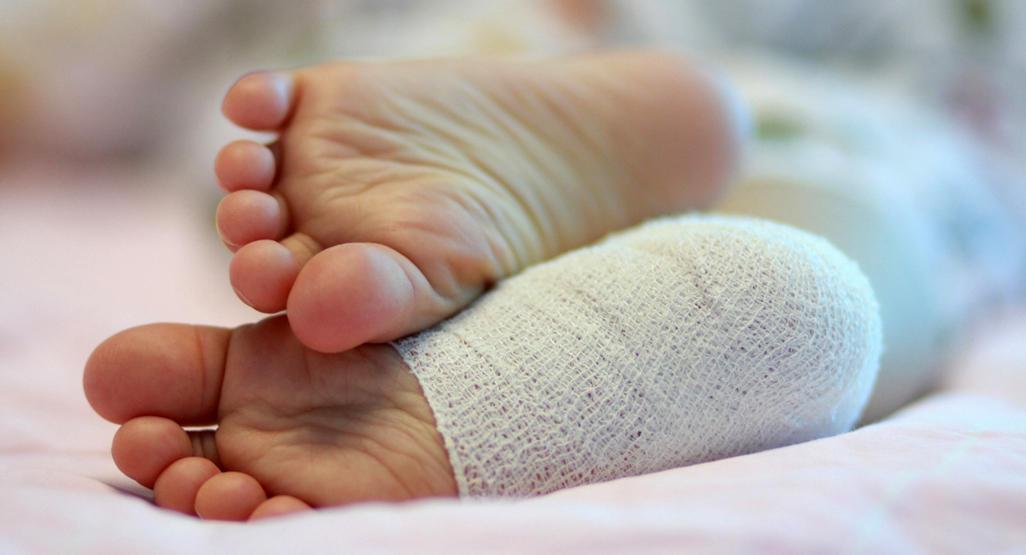 درمان پیچ خوردگی و کوفتگی دست و پا با زرده تخم مرغ، زرد چوبه و خرما