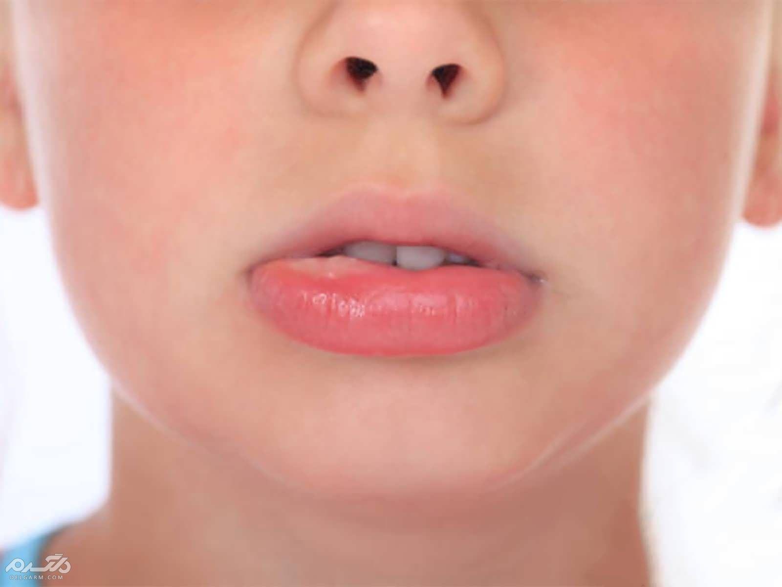آفت دهانی کودکان