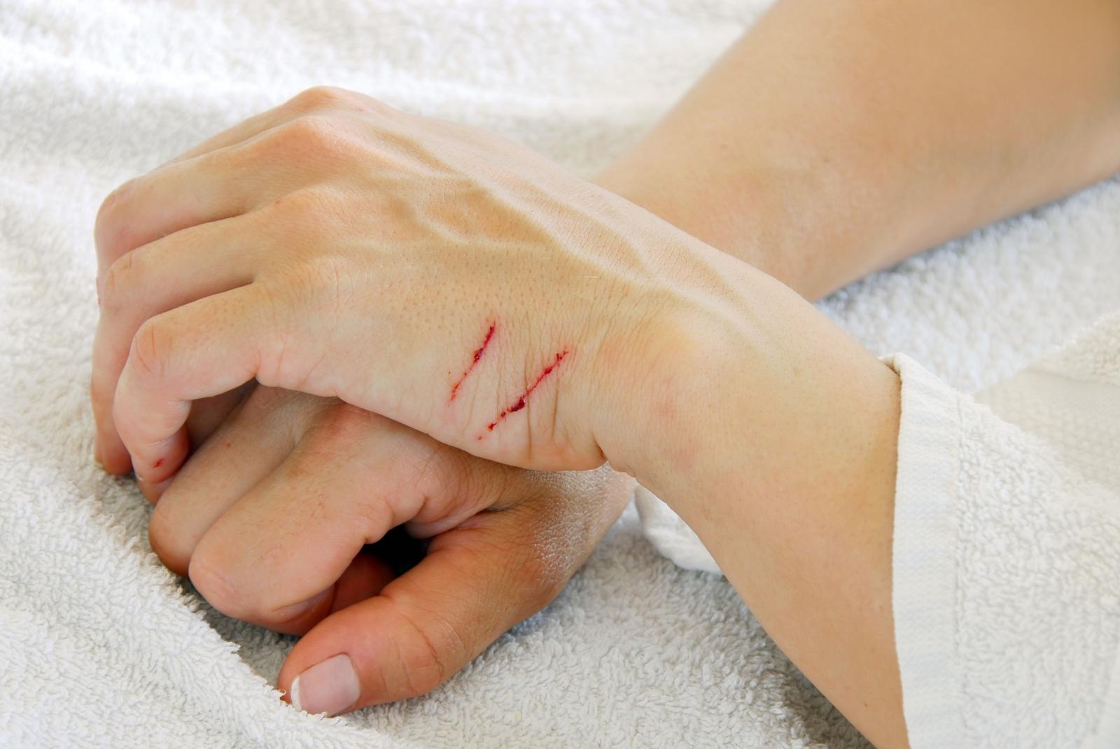 مراقبت از زخم – درمان، عفونت و عوارض