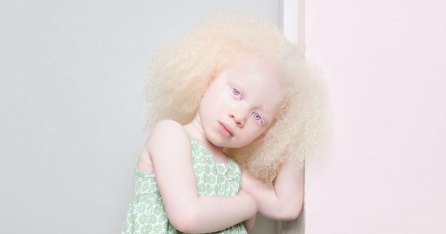 افراد زالی که مژه و موهای سفید دارند