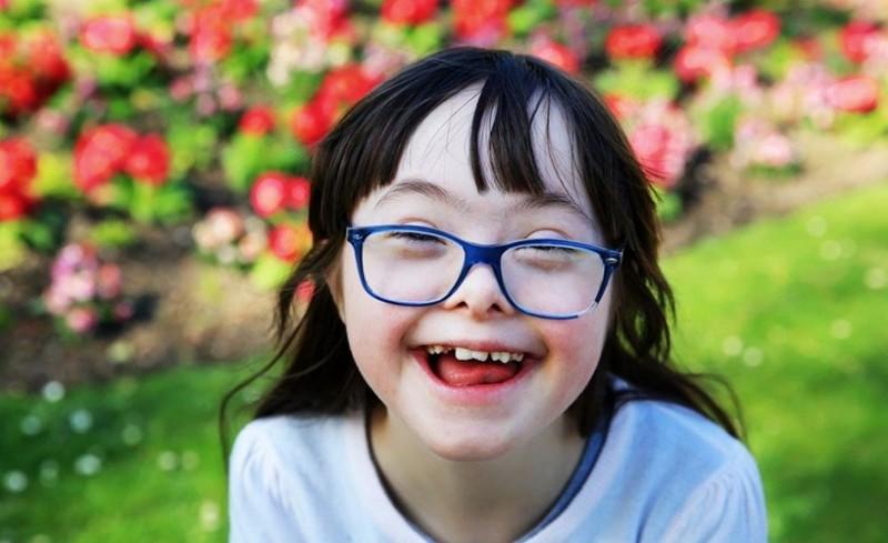 سندرم داون چیست؟ علل، علائم و درمان سندرم داون