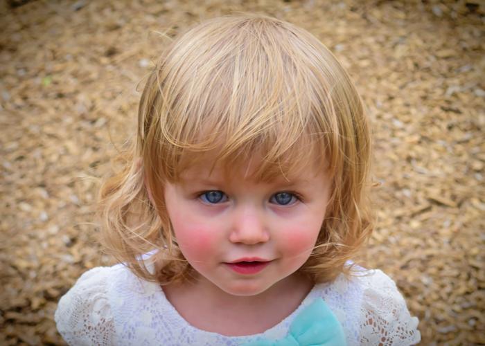 پیشگیری و درمان بیماری کاوازاکی در کودکان زیر 5 سال