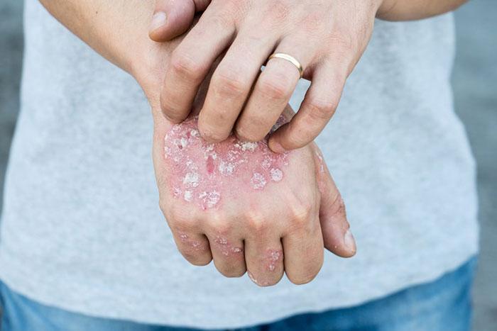 علت ایجاد بیماری درماتوفیتوز و درمان این بیماری