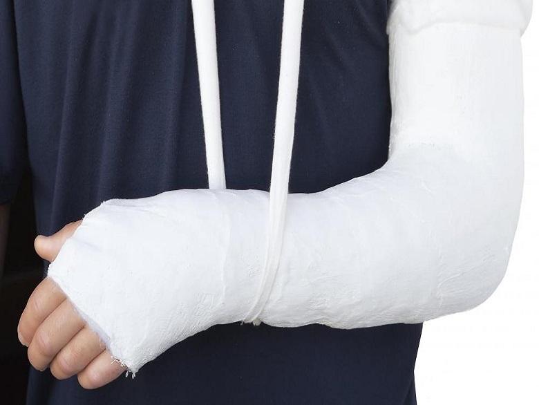دیر جوش خوردن و جوش نخوردن در شکستگی استخوانها: علت و درمان