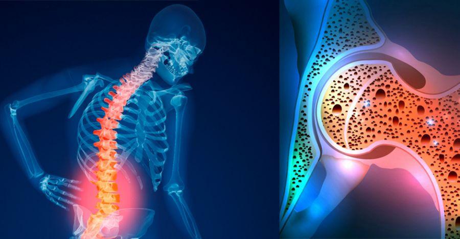 داروهای ایجاد کننده پوکی استخوان