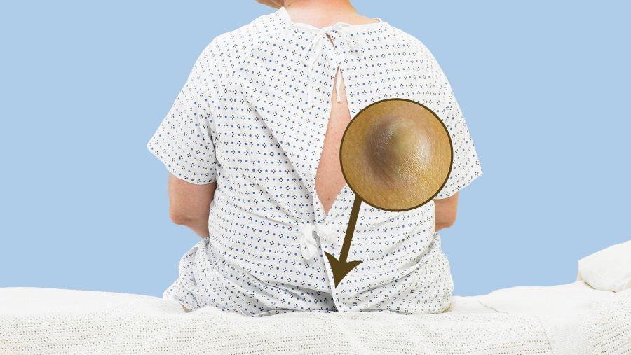 درمان کیست مویی؛ علل ایجاد و علائم کیست مویی را بشناسید