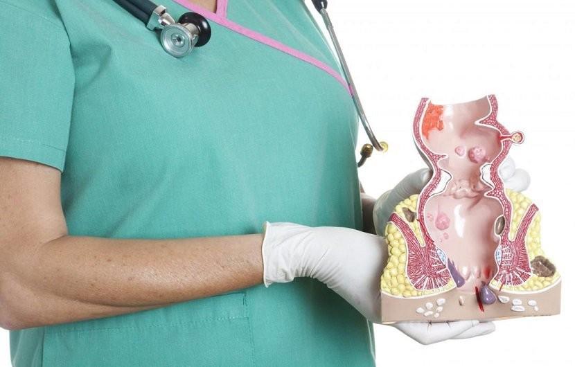 درمان زایده یا گوشت اضافه روی مقعد