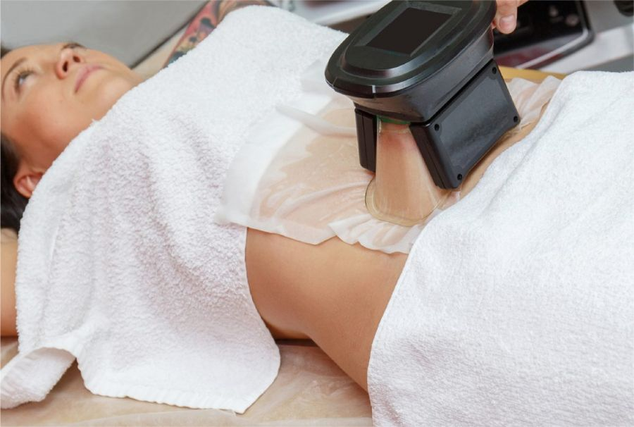 کرایولیپولیز چیست؟ روشهای غیر جراحی لاغری موضعی کول اسکالپتینگ