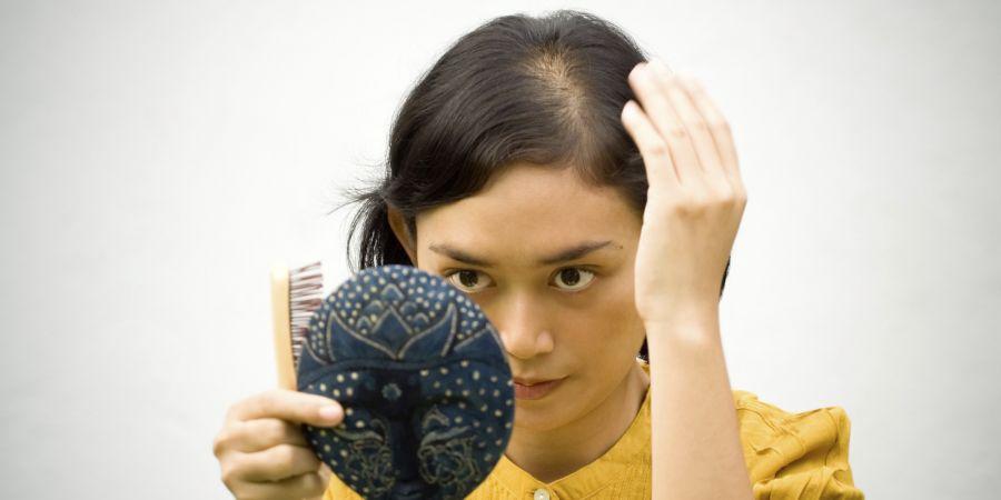 علت ریزش موی آندروژنیک  + درمان