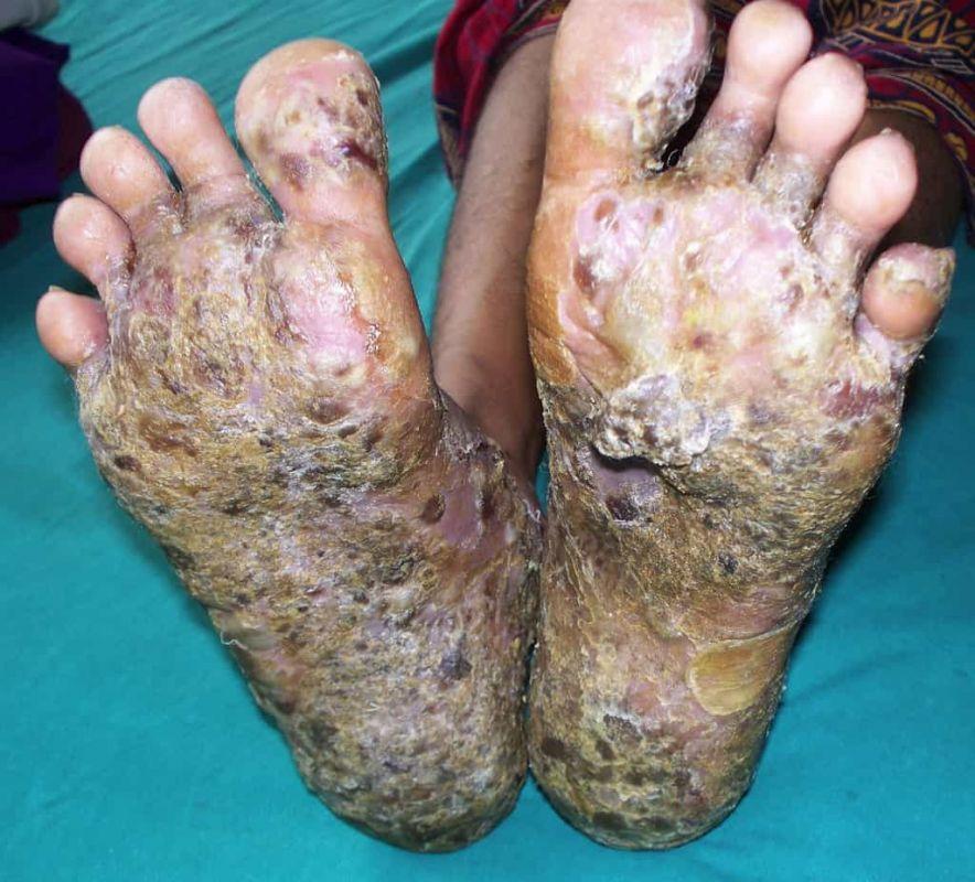 بیماری پمفیگوس : نگاهی جامع به علائم، علل ایجاد، تشخیص و درمان این بیماری