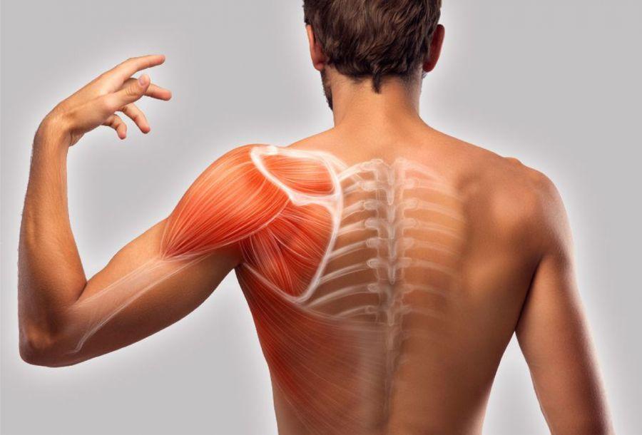 درمان شانه های افتاده ،نابرابر و نا متقارن با فیزیوتراپی و ورزش