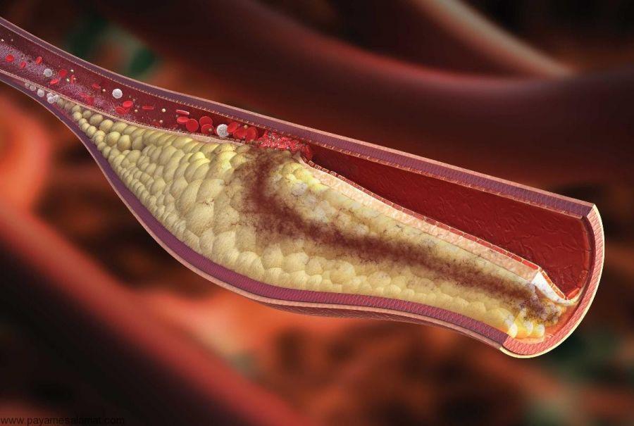 عوارض پایین بودن تری گلیسیرید خون چیست؟