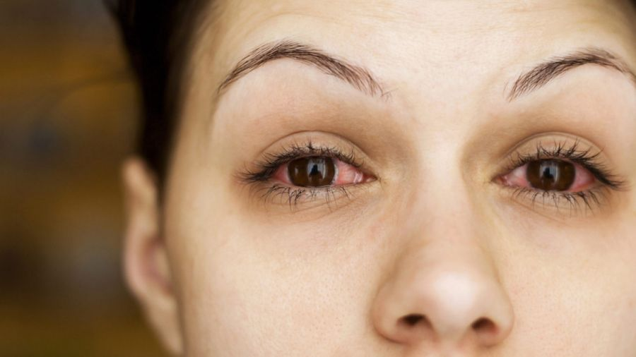 علائم و درمان سندرم التهابی چشم با نام سودوتومور اربيت