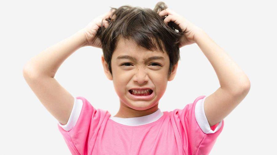 علل ایجاد شوره سر در کودکان