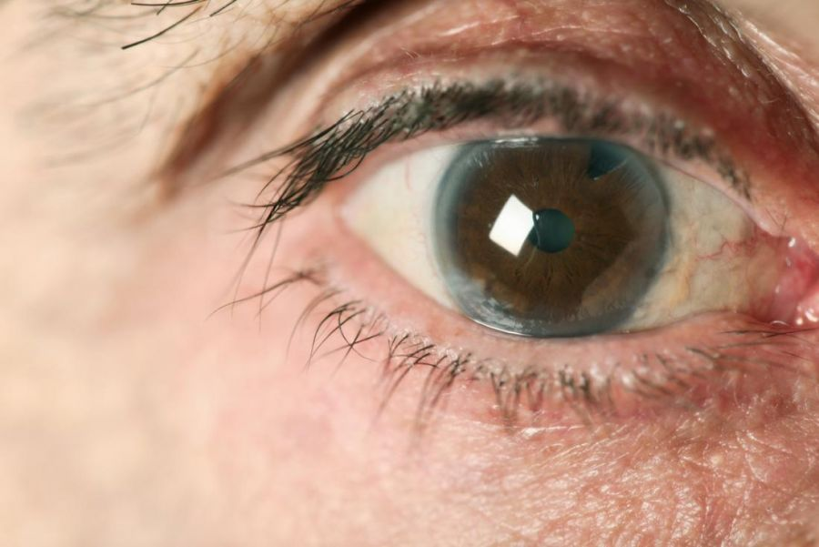 علل و علائم بیماری گلوکوم و راههای درمان و پیشگیری از آب سیاه چشم