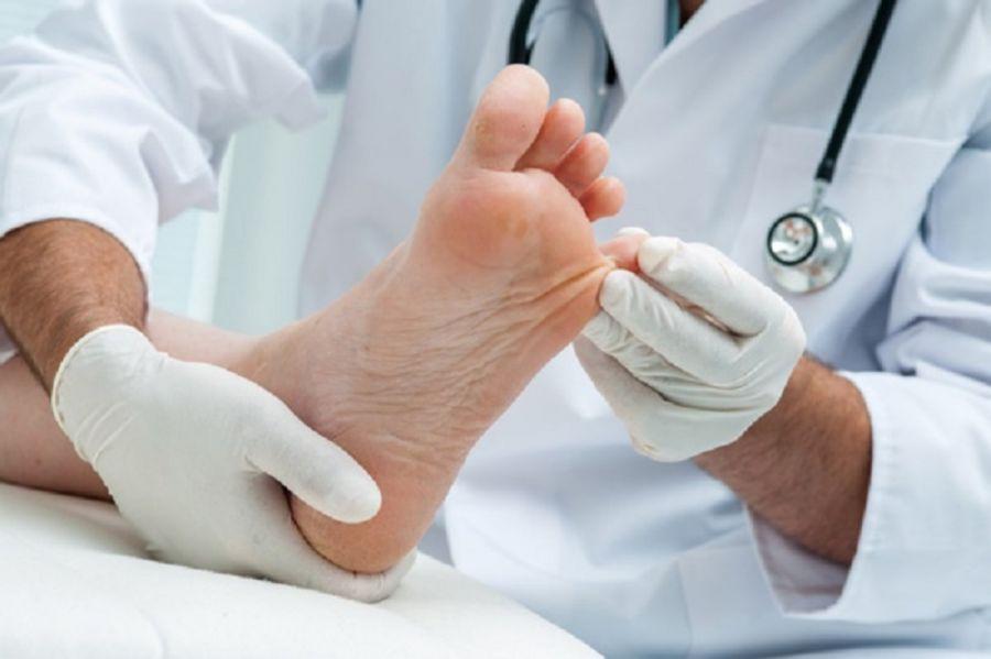 انگشت چکشی ، چوگانی یا چنگالی چیست؟ آیا قابل درمان است؟