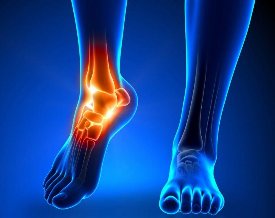 درمان درد مچ پا با تزریق داخل لیگامنت فیبولوکالکانیال