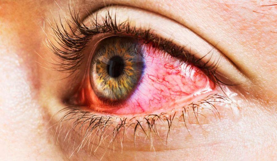 قرمزی چشم چیست و علل به وجود آمدن و راه های درمان آن چیست ؟