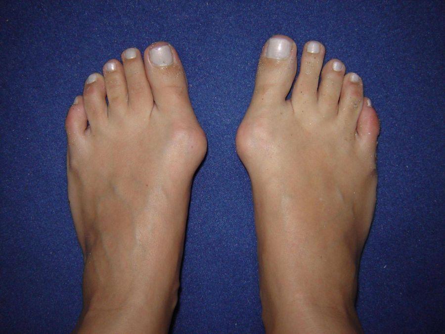 هالوکس والگوس بونیون انحراف شست پا و درمان آن