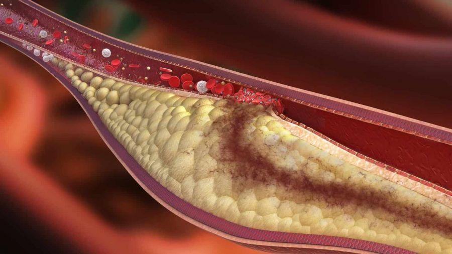 از خطرات بالا بودن چربی خون چه میدانید؟