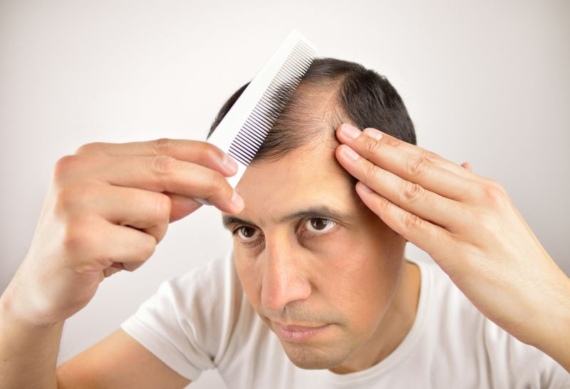 لیست داروهایی که باعث ریزش مو می شود