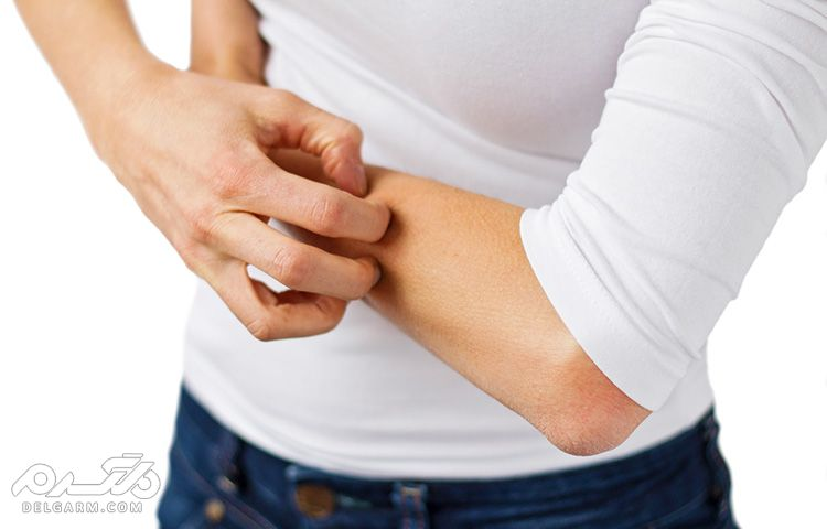 علل تشخیص درمان و عوارض بیماری خارش پوست