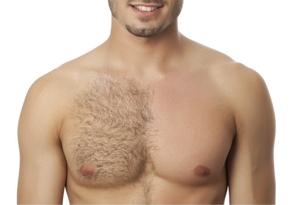 هر آنچه که باید در مورد مو بر (واجبی) بدانید