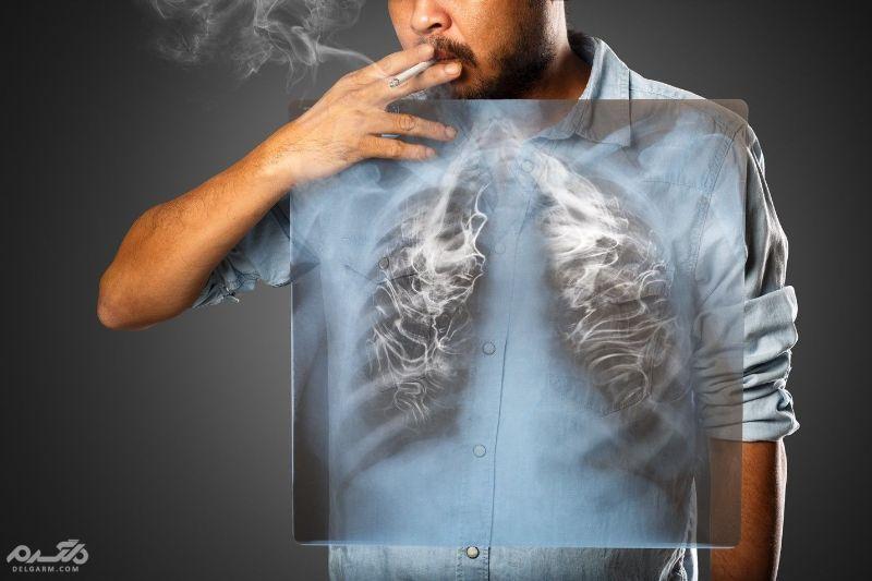 بیماری های ریه و پیشگیری از عفونت ریه