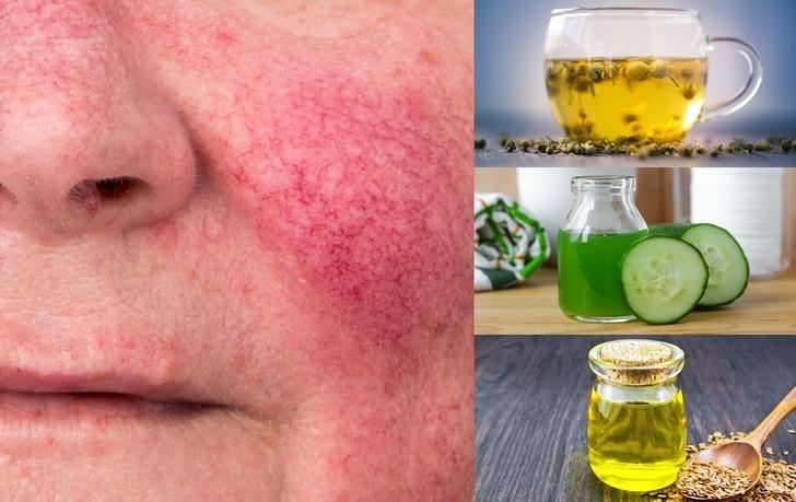۱۲ راه حل خانگی برای درمان بیماری روزاسه (Rosacea)