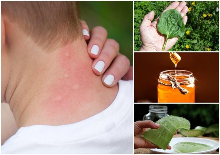 ۱۵ راه خانگی با مواد غذایی برای درمان گزش پشه