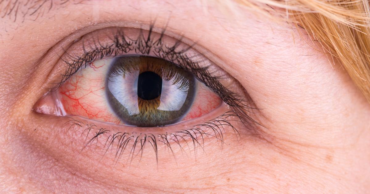 روش درمان قرمزی چشم چیست؟