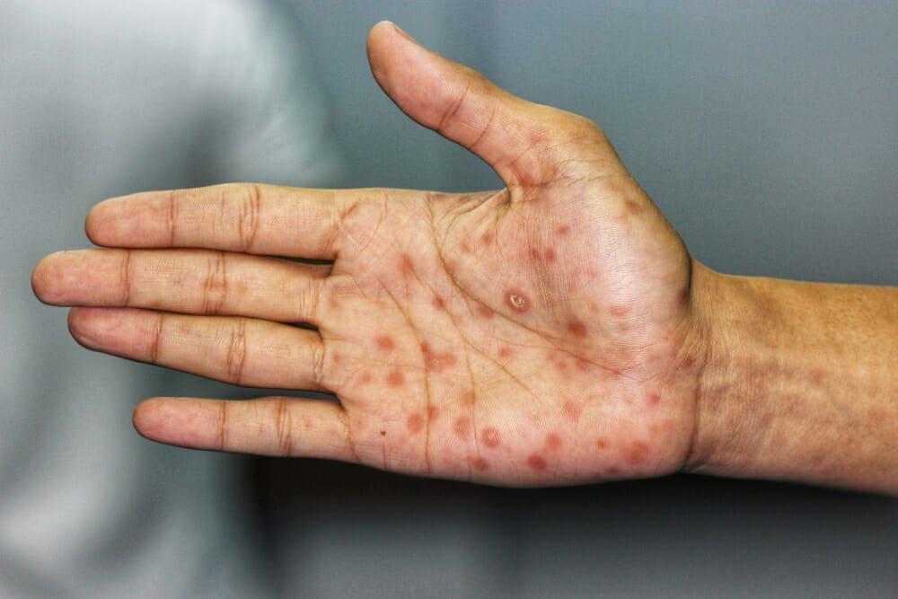 همه چیز در مورد بیماری سیفیلیس + علائم و درمان