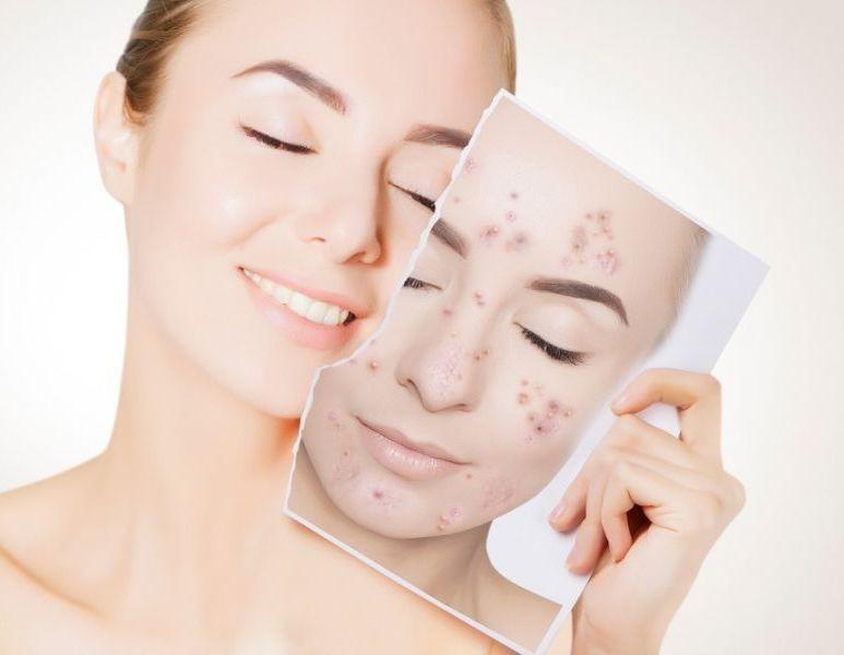 جوش صورت: ۲۱ روش قدرتمند برای درمان سریع جوش صورت