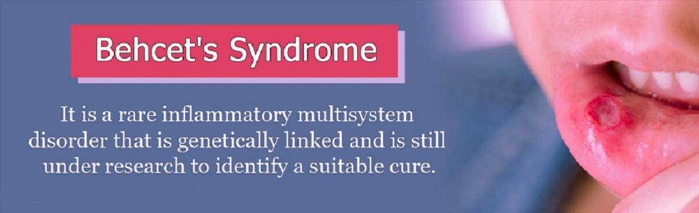 بیماری بهجت یک بیماری خود ایمن وحشتناک