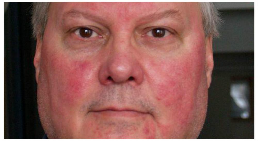 حساسیت قرمزی صورت و درمان های خانگی آن