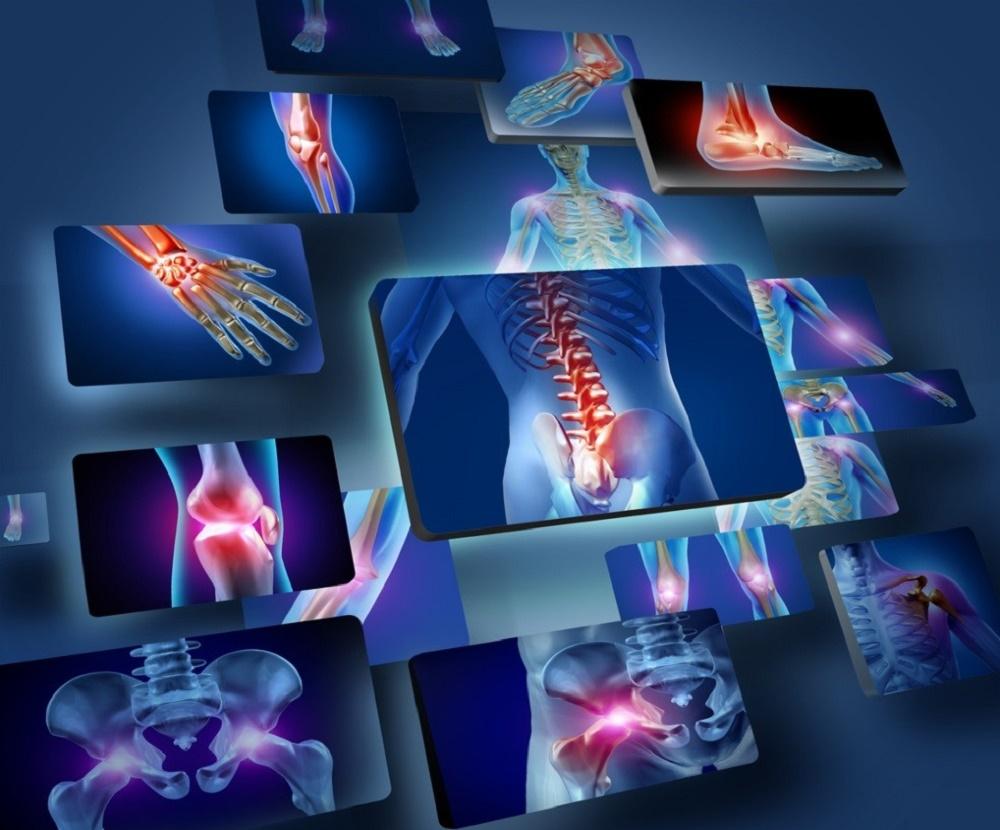 علت درد استخوان و درمان های خانگی برای آن