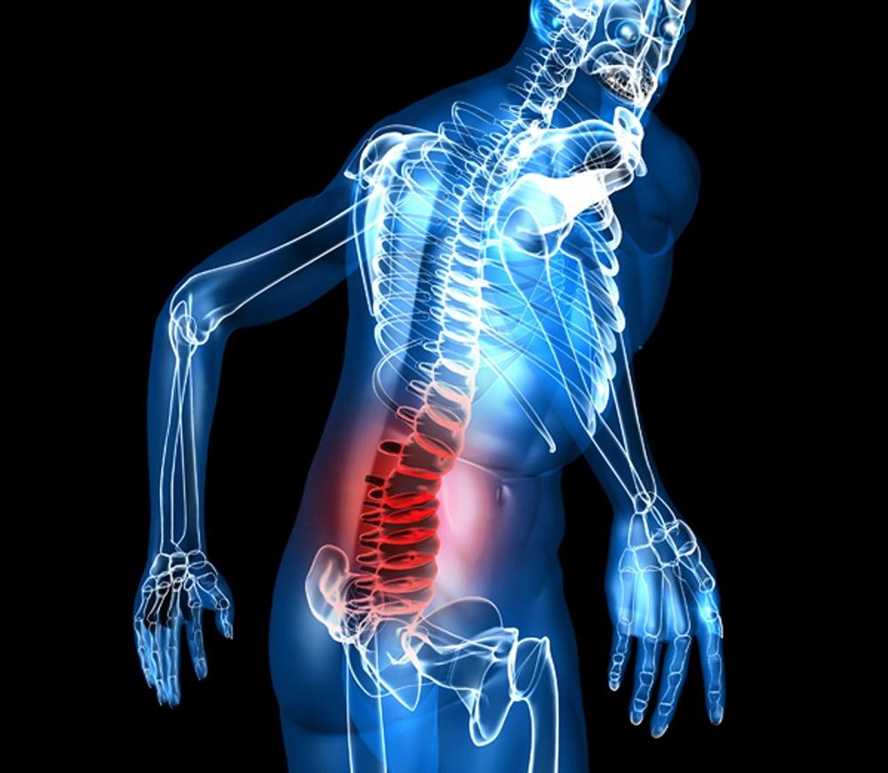 درد رگ سیاتیک و درمان های خانگی آن