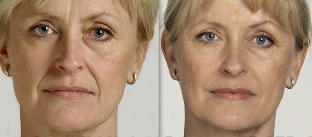 تزریق ژل خط خنده برای جوانسازی صورت
