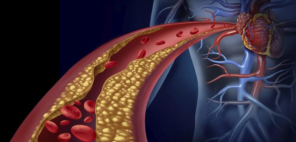 تصلب شرایین یا آترواسکلروز و درمان های گیاهی آن