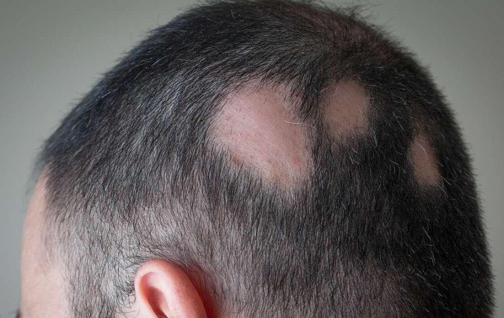 فواید تزریق تریامسینولون در سر برای درمان ریزش مو