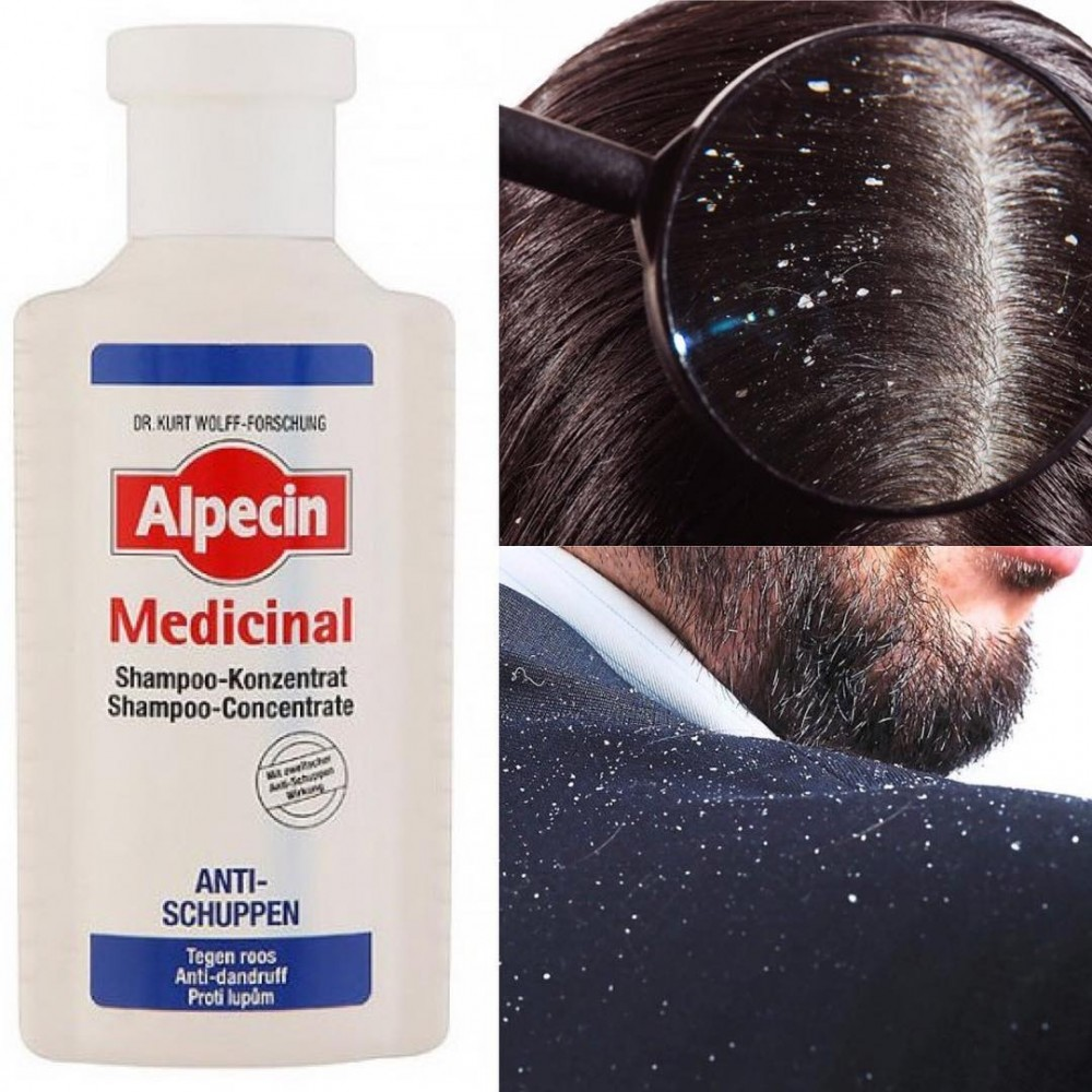 فواید شگفت انگیز تونیک موی فرش آلپسین مدیسینال