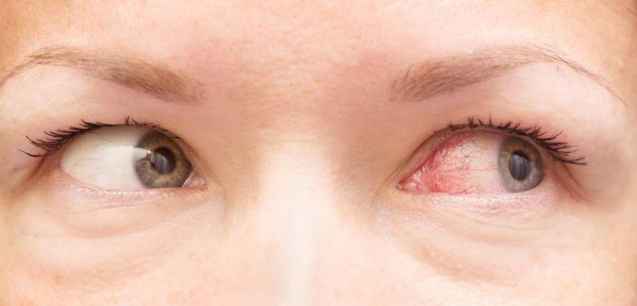 عفونت چشم و راههای ساده پیشگیری از آن