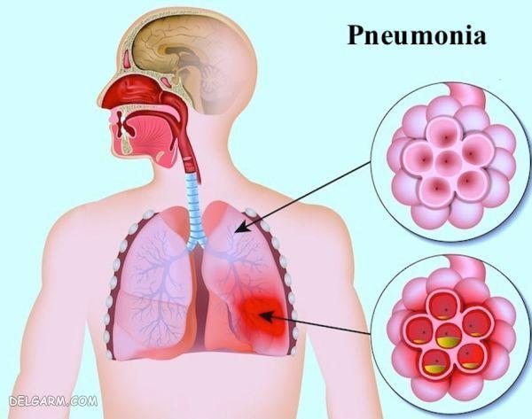 بیماری پنومونی
