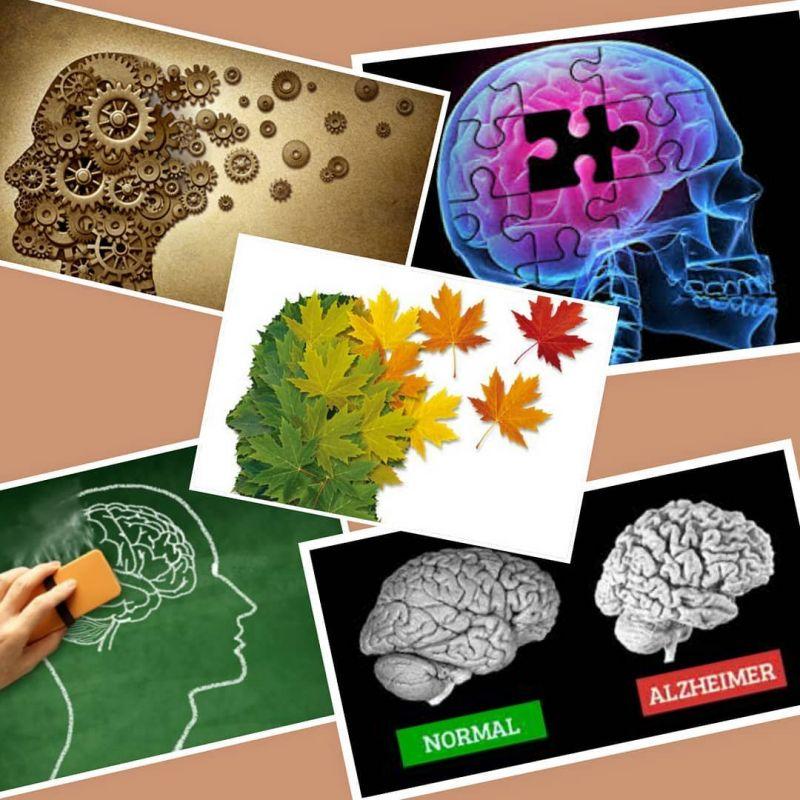 مقایسه بیماری آلزایمر با زوال عقل و تفاوت های آنها